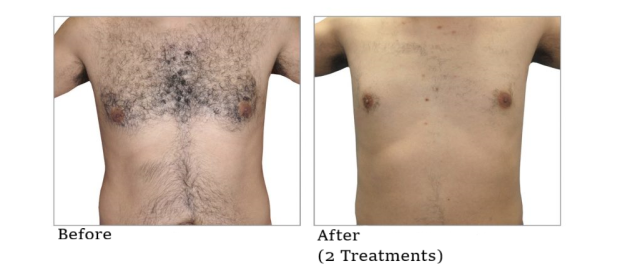 Hair Removal Male